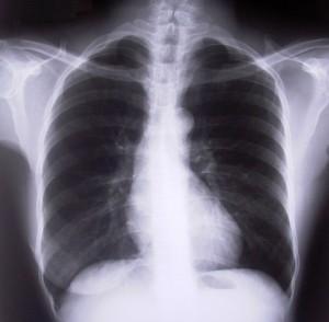 lung cbd